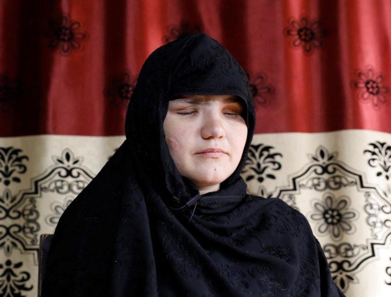 Afghánku přepadli a vypíchli jí oči jen proto, že chtěla pracovat mimo domov