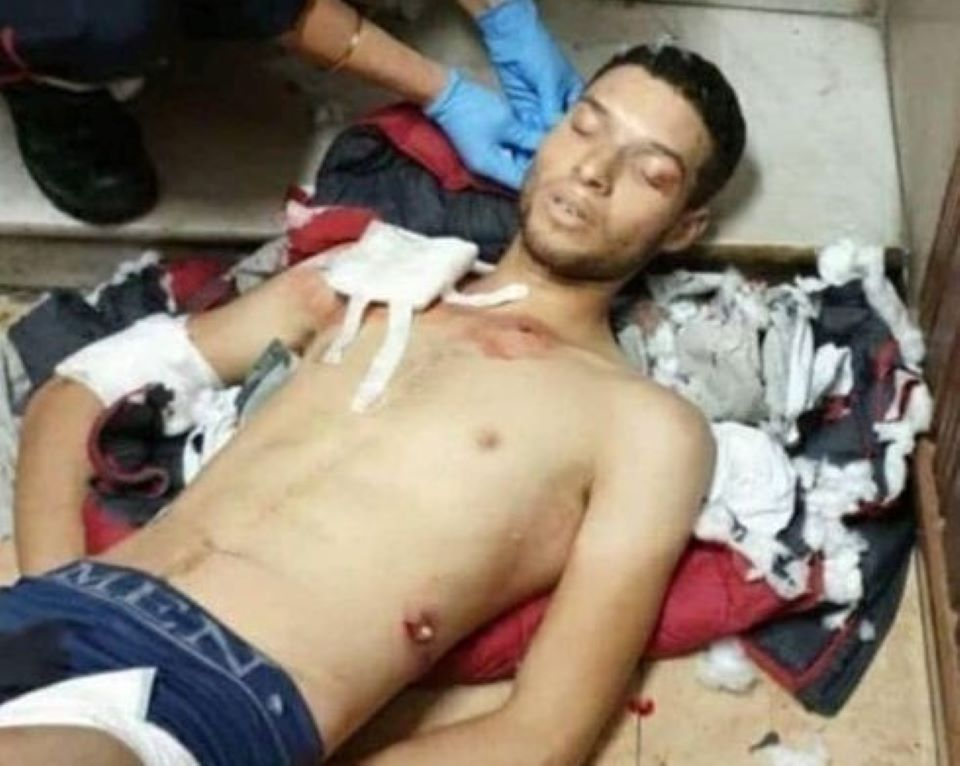 Vetřelec, který útočil v Nice, křičel Alláhu akbar i poté, když ho postřelili