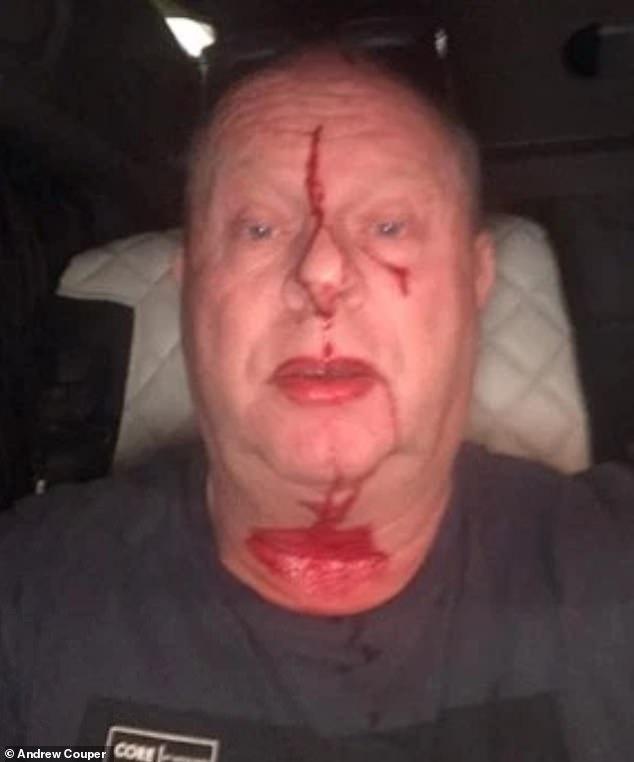 Takto dopadl britský řidič kamionu, jehož napadli vetřelci