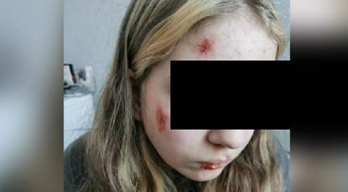 """Dva pachatelé """"jižního vzhledu"""" brutálně napadli a zranili patnáctiletou Němku"""
