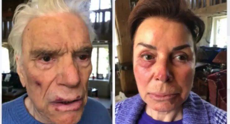 Pár francouzských důchodců byl v jejich domě brutálně napaden 4 Afričany