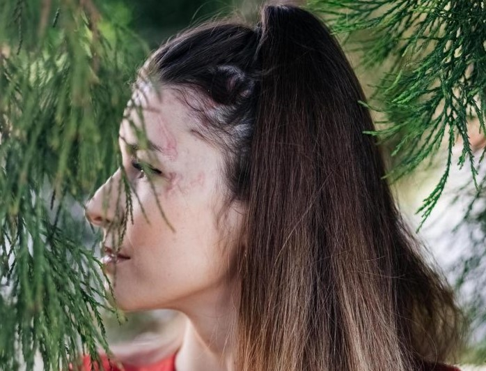 Švýcarsko: Afghánec se přiznal k útoku kyselinou na modelku