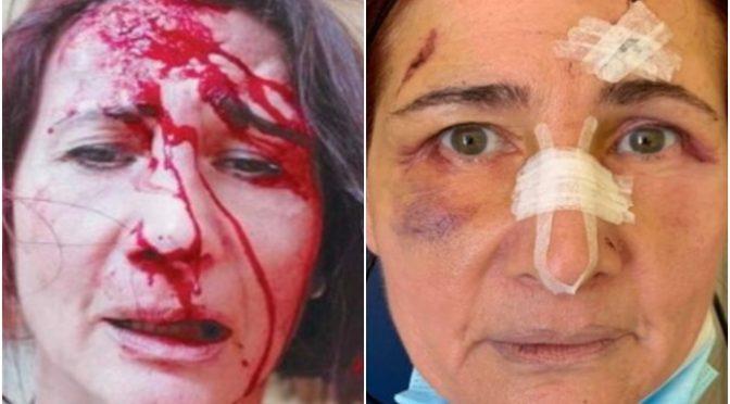 Itálie: Afričan útočil na nádraží na čekající ženu, zranil ji v obličeji