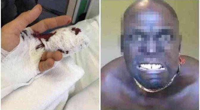 Itálie: Vetřelec se vloupal do domu, kde ho přistihl majitel, lupič ho napadl nožem a pokousal