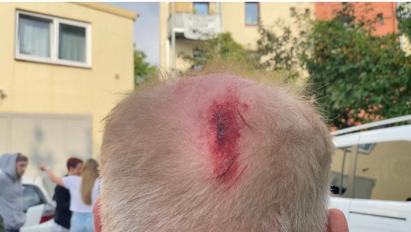Antifa násilně napadla předvolební shromáždění AfD v Hamburku – jeden muž skončil v nemocnici
