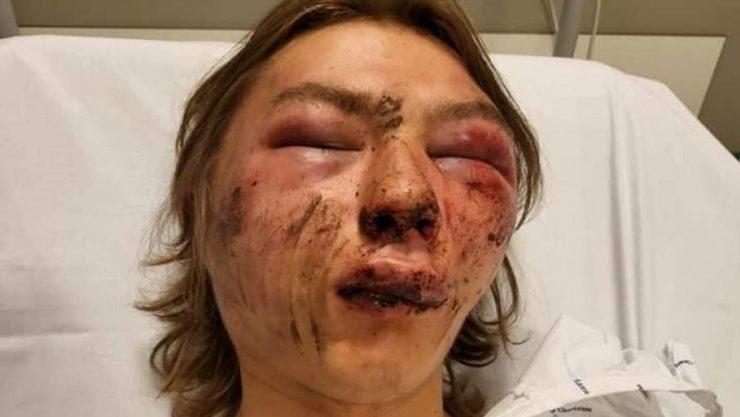 Belgie: Takto zbili muslimové 15letého nemuslima, který se zamiloval do čečenské dívky